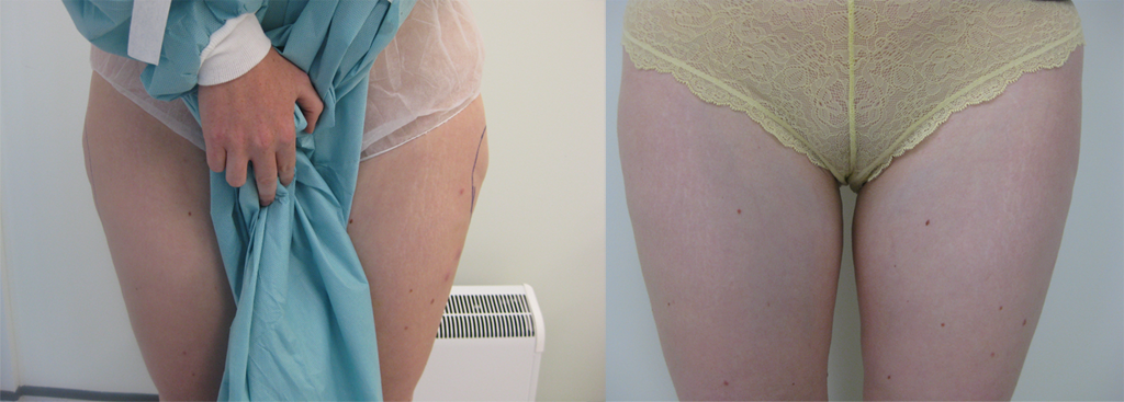 Before & After SmartLipo